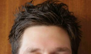 What are the Hair loss Symptoms, Causes and Treatments